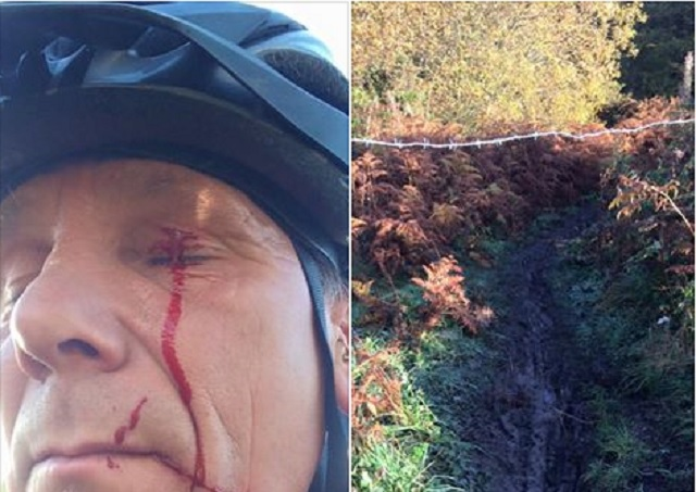 Cyclist posts photo of injury sustained from barbed wire strung ...